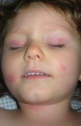Bed Bug Bites on Face and Eyelids